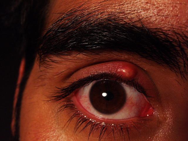 De ce mananca papiloame si mancarimi: analiza simptomelor - Psoriazis July