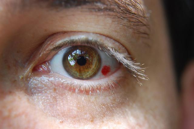 tratament cu vase oculare)